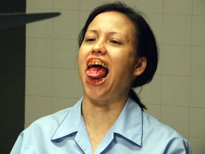 Mouth Cancer Singapore